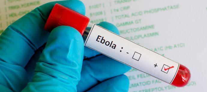 Les États-Unis entendent imposer des mesures de santé publique aux voyageurs de la RDC et de la Guinée
